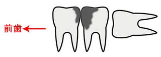 本日知らされたkeinohooの奥歯の状況。。。驚愕。。。